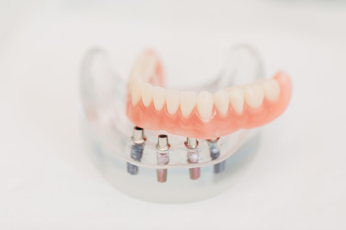 Zahnarzt Niepmann, Prien, Implantologie, Dentallabor, Zahnärzte
